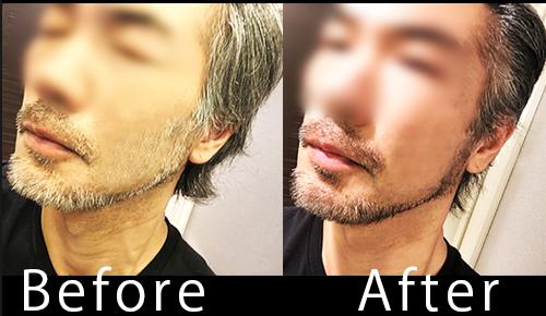 サロンドプロのマスカラスティックで髭白髪を簡単に隠す!左:Befor/右:After