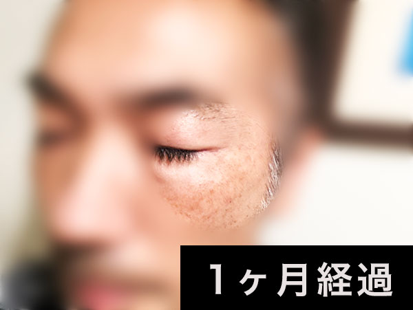 40代男性メンズ シミ ケア 【クワトロボタニコ】1ヶ月,2ヶ月,3ヶ月,4ヶ月,5ヶ月,6ヶ月使用シミ消しレビュー